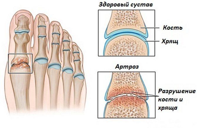 Kostya și-a rupt piciorul. Cum este tratată o fractură de picior?